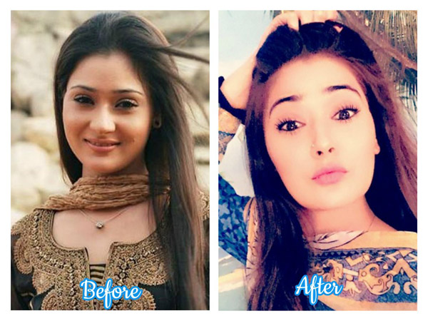 daily soap actresses who have undergone plastic surgery